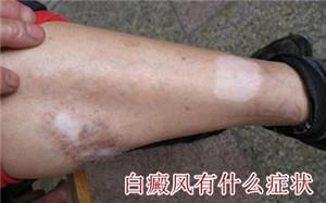 腿部的白癜风有哪些症状表现
